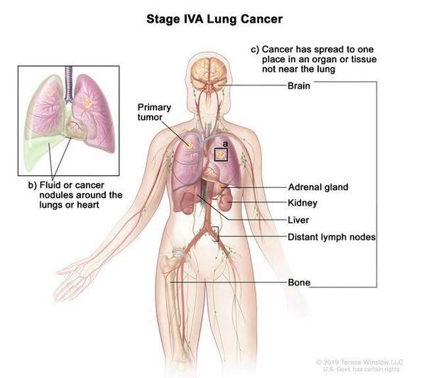 Lung Cancer Medlineplus Genetics