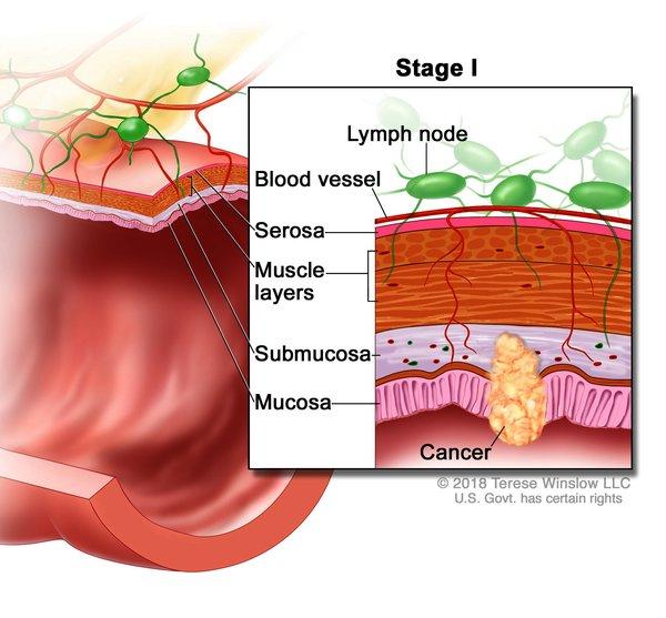 cancer colorectal ncbi
