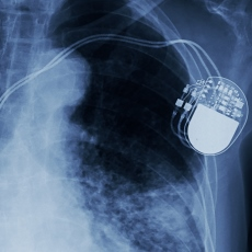 Pacemakers and Implantable Defibrillators