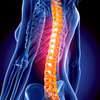 Spine Injuries and Disorders