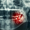 Tooth Disorders