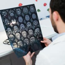 Traumatismo cerebral y de cabeza
