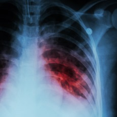 Facts about Tuberculosis