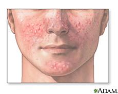 Ilustración de acné facial
