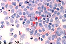 Células humanas de leucemia mielógena aguda (LMA)