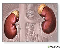Ilustración de los riñones y las glándulas suprarrenales