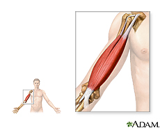 Illustration of arm muscle