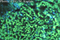 Una fotomicrografía de organismos de Aspergillus