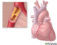 Illustration of the heart featuring coronary artery blockage (atherosclerosis)