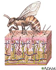 Ilustración de una abeja dejando su aguijón en la piel de su víctima