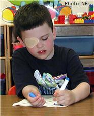 Niño con un parche en el ojo