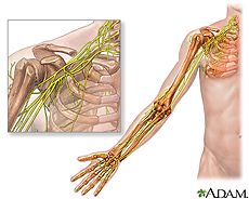 Ilustración del hombro y del brazo demostrando el plexo braquial