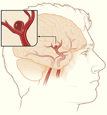 Drawing of a brain aneurysm.
