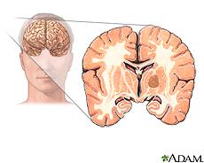 Illustration of a brain tumor