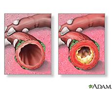 Ilustración de bronquios normales y otros con bronquitis