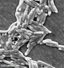 Electron micrograph of Campylobacter fetus bacteria