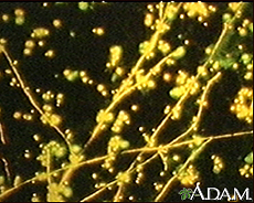 Photograph of a microscopic film showing a fluorescent stain of Candida, a yeast (fungus)