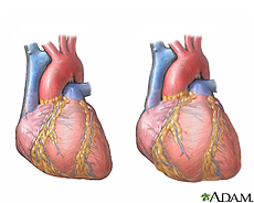 Illustration of a normal heart and  a heart enlarged due to cardiomyopathy