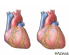 Ilustración de un corazón normal y un corazón agrandado por la cardiomiopatía