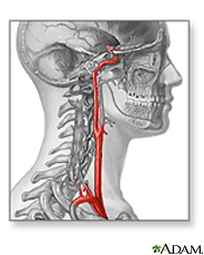 Illustration of a carotid artery