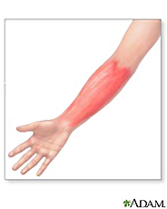 Illustration of cellulitis on the arm