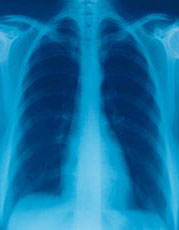 Photograph of a chest x-ray