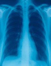 Fotografía de una radiografía del pecho