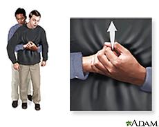 Ilustración de la maniobra de Heimlich en un adulto asfixiado
