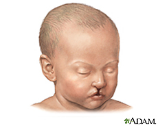 Ilustración de un bebé con el labio hendido