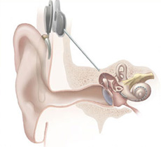 Illustration of ear with cochlear implant.
