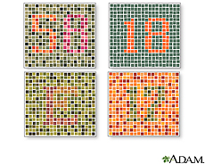 Illustration of various tests for color blindness