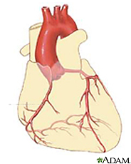 Ilustración del corazón mostrando la arteria coronaria derecha