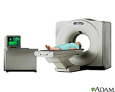Ilustración de un paciente dentro de un escáner de CT para tomografías computarizadas