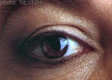 A photograph of an eye