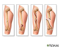 Ilustración de diversos tipos de fracturas