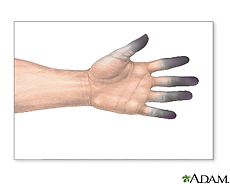 Illustration of frostbite on the fingers