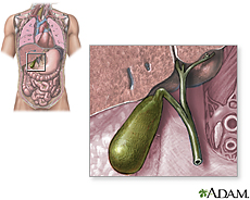 Illustration of the gallbladder