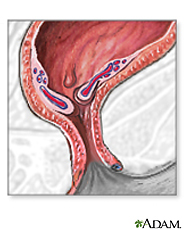 Illustration of inflamed hemorrhoids