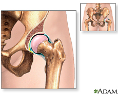 Ilustración de la articulación de la cadera