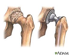 Ilustración de la articulación de la cadera antes y después de un reemplazo