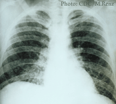 An x-ray of lungs with acute pulmonary histoplasmosis