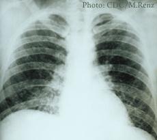 Un rayos-x de histoplasmosis pulmonar aguda en los pulmones