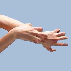Ilustración de una persona rascándose la mano
