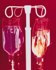 Photograph of IV bags on a stand