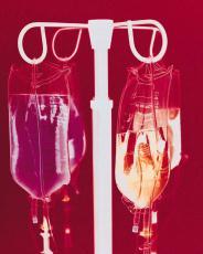 Fotografía de bolsas intravenosas en un soporte