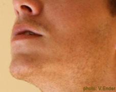 Fotografía de la mandíbula en un hombre