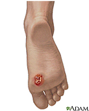 Illustration of Kaposi's Sarcoma on the foot