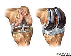 Ilustración de la articulación de la rodilla antes y después de un reemplazo con prótesis