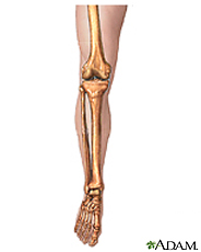 Illustration of a leg showing the leg bones