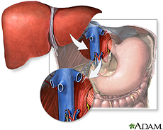 Illustration of liver transplantation